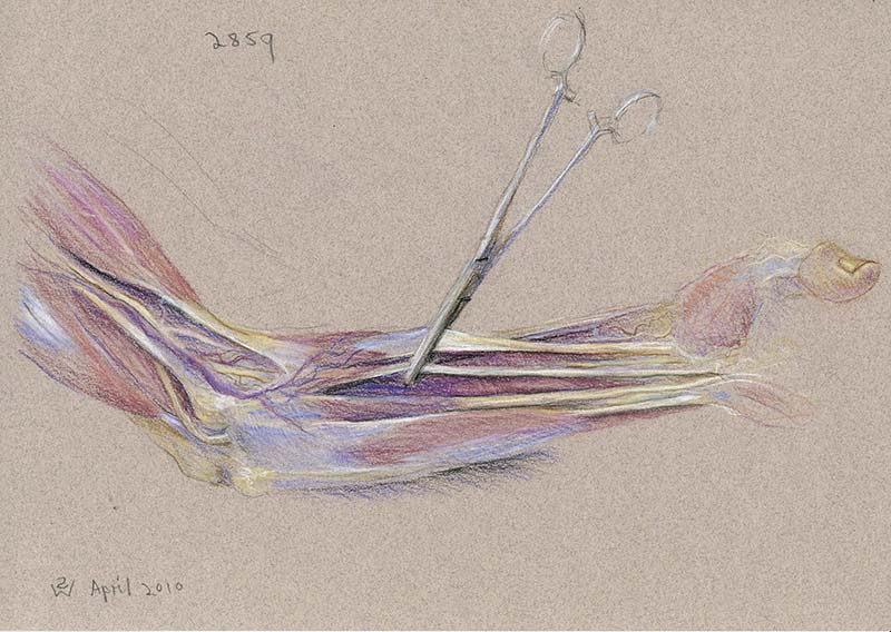 Forearm (left, medial view): Forceps Gripping Flexor Tendons by Susan Dorothea White